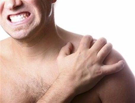 síndrome de pinzamiento de hombros
