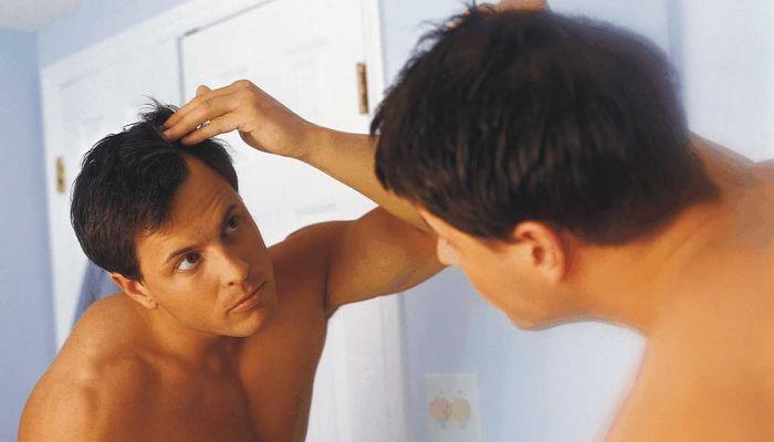 Alopecia por esteroides